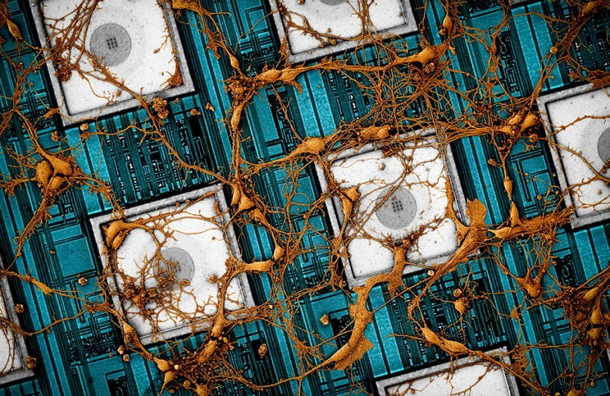 Samsung Electronics предлагает концепцию «копирования и вставки» нейронных связей мозга на нейроморфных чипах